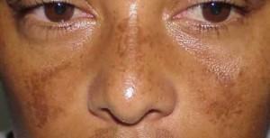masque-de-grossesse